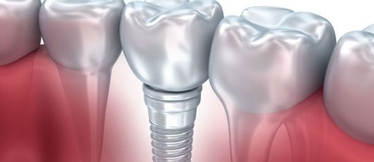 Pose d'implants dentaires